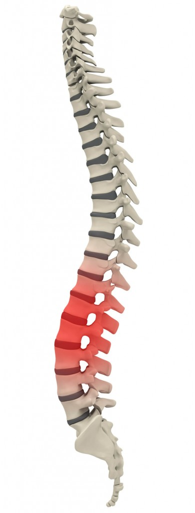 back-pain-relief-chiropractic-clinic-sydney-cbd